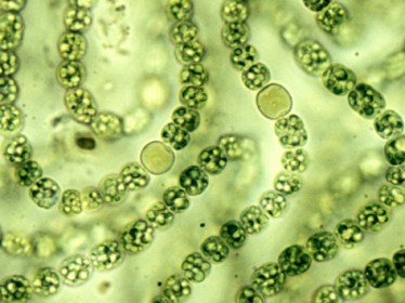 cyanobacteria_microscope_big